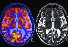 Mental Health Monday – a Neural Portrait of the Human Mind